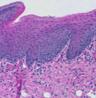 Imagem que mostra os tecidos e os músculos presentes na língua.   <br></br> Palavras-chave: Histologia. Tecidos. Músculos.