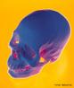 Proteção do Cérebro contra choques mecânicos. <br/><br/> Palavras-chave: Corpo Humano, Sistema Ósseo, Choque, Mecânico, Cérebro