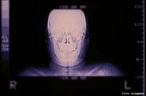 Ilustra os ossos da face e os ossos frontal e temporais do crânio. <br/><br/> Palavras-chave: Anatomia, ossos da cabeça, crânio.