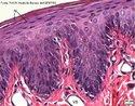 O corte transversal de secção de lábio mostra células achatadas, características do tecido epitelial pavimentoso. <br/><br/> Palavras-chave:  Histologia. Epitélios. Pele. Mucosas. Proteção. Revestimento.